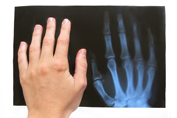 medical copy of a broken hand